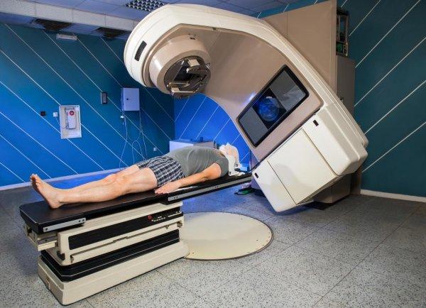 Haftalarca süren kanser tedavisini 1 saniyeye indiren yöntem