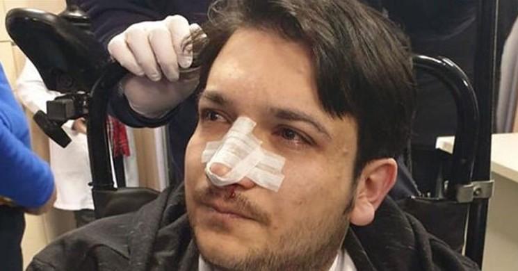 Randevusuz Hasta, Hekime Saldırdı
